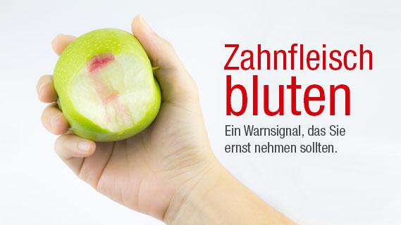 Zahnfleischbluten-warnsignal-implanteer