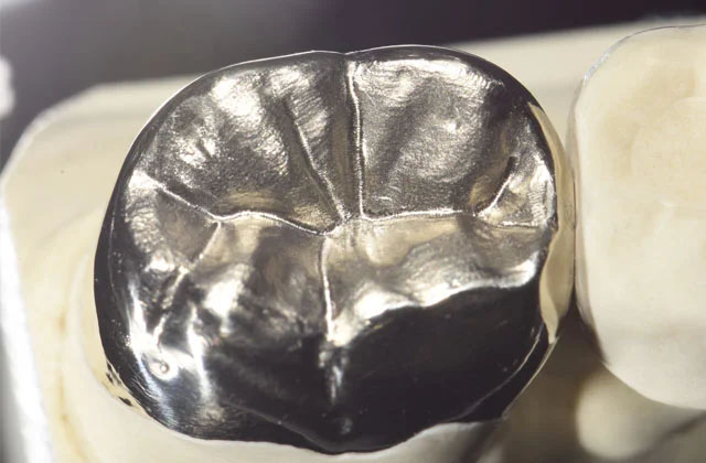 Zahnmaterial Gold in München – Implanteer